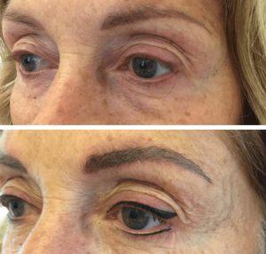 Vorher/Nachher Fotos Permanent Make-Up Augenbrauen