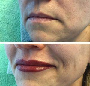 Vorher/Nachher Fotos Permanent Make-Up Lippen Avantgarde Kiss